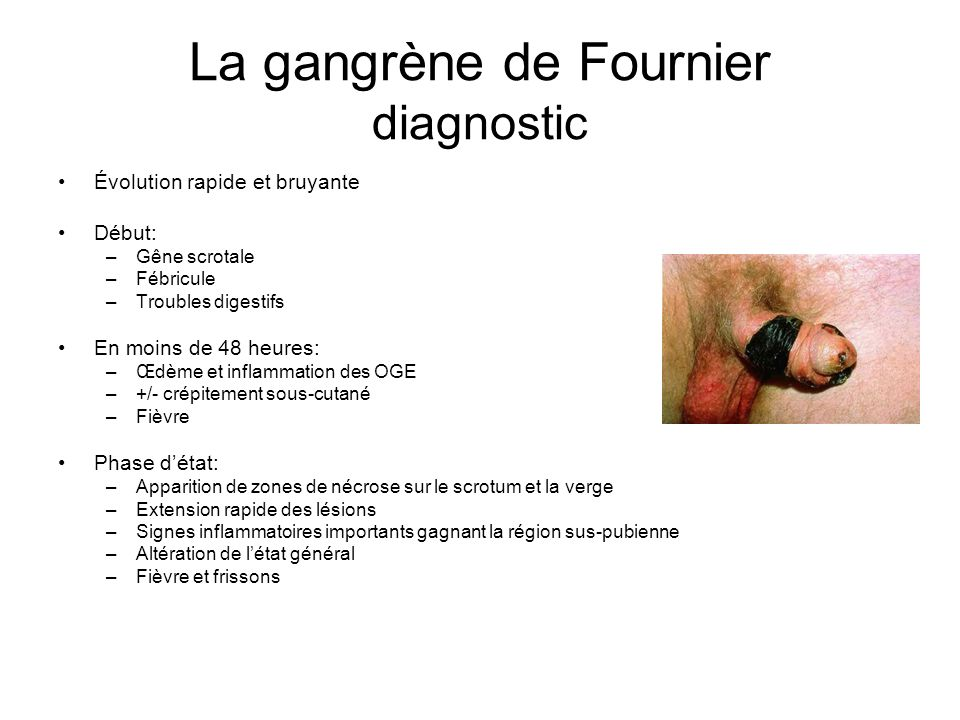 La gangrène de Fournier diagnostic
