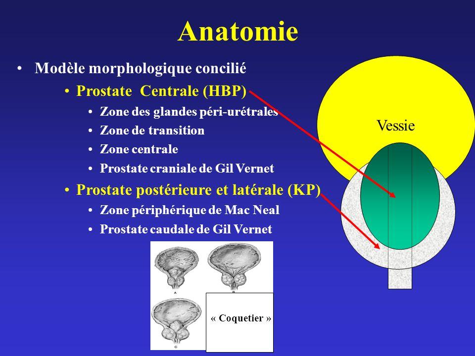 Anatomie Modèle morphologique concilié Prostate Centrale (HBP) Vessie