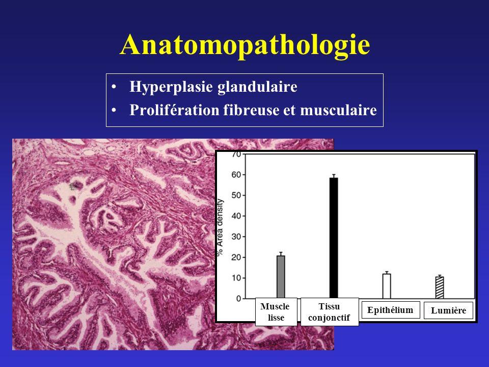 Anatomopathologie Hyperplasie glandulaire