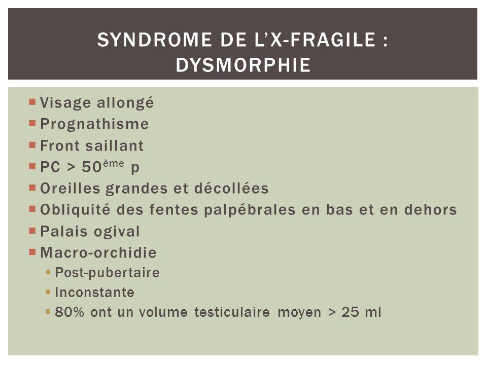 Syndrome de l'X-fragile : dysmorphie