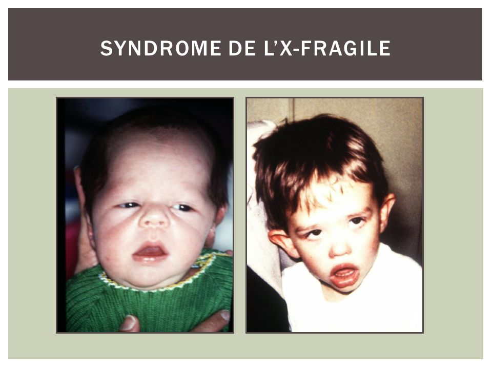 Syndrome de l'X-fragile