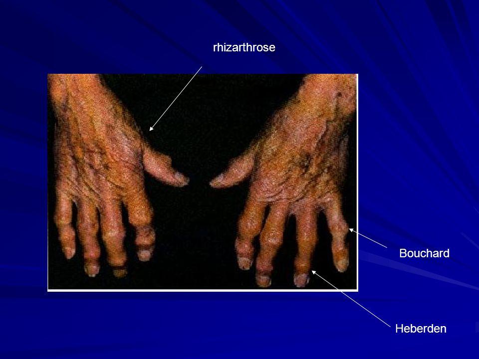 rhizarthrose Bouchard Heberden