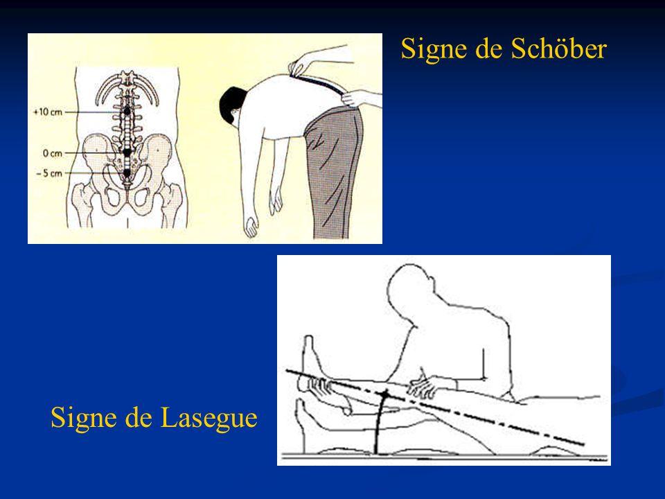 Signe de Schöber Dessin lasegue et schober Signe de Lasegue