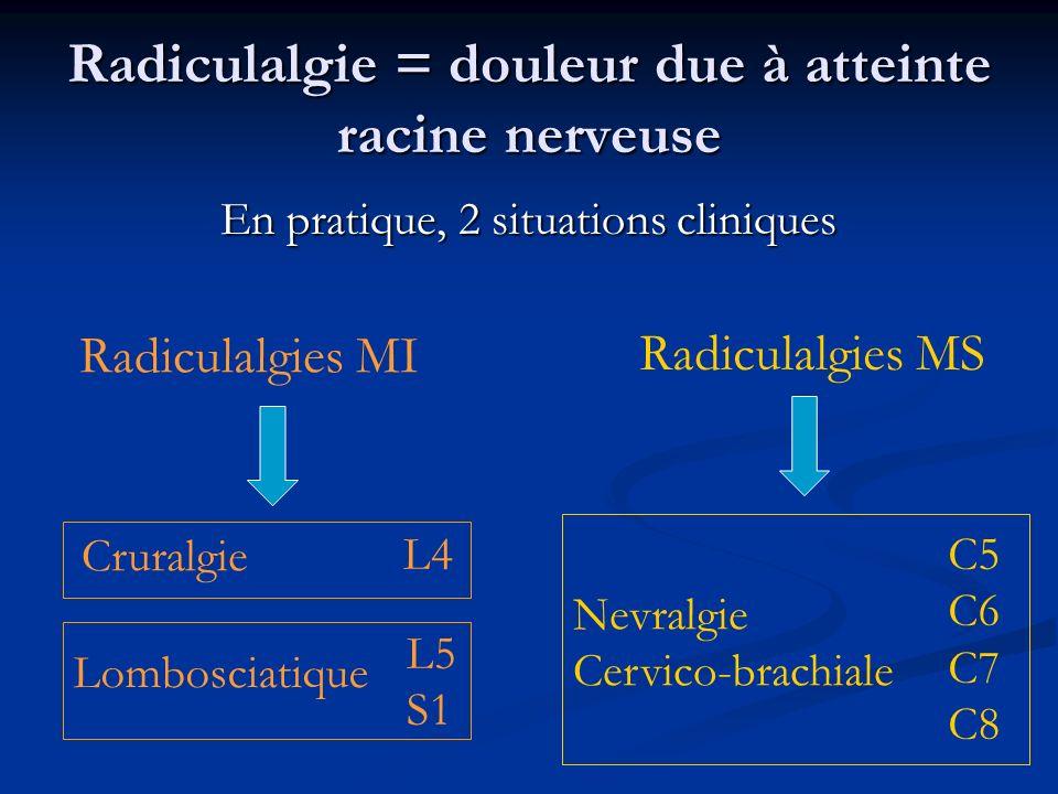 Radiculalgie = douleur due à atteinte racine nerveuse