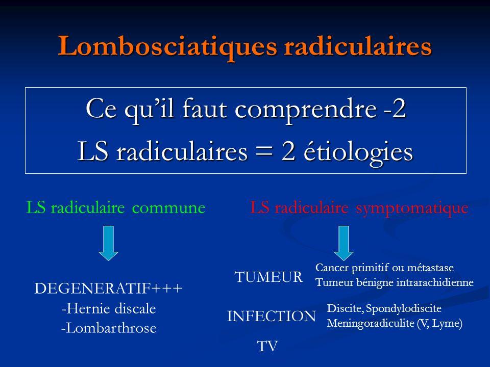 Lombosciatiques radiculaires