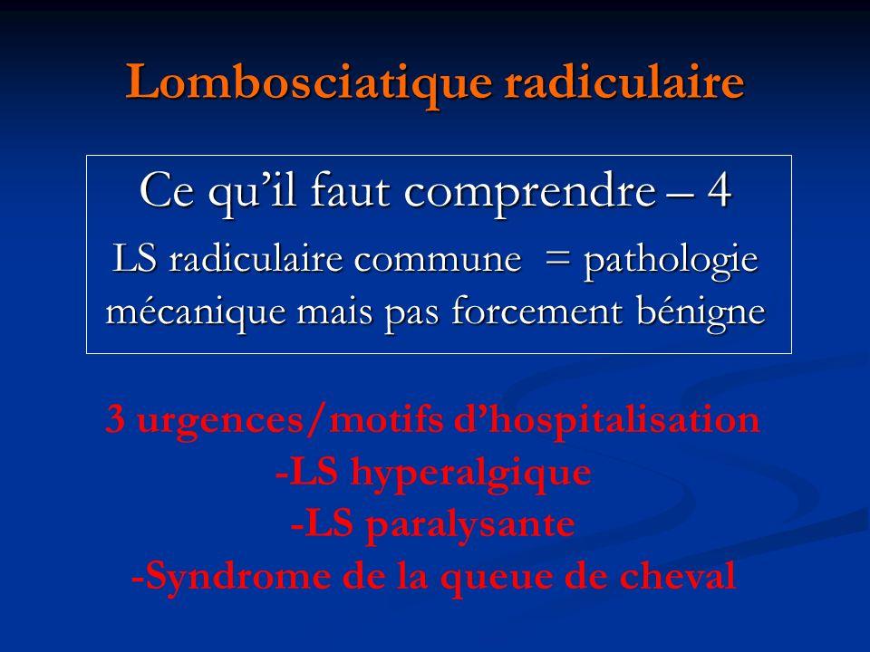 Lombosciatique radiculaire