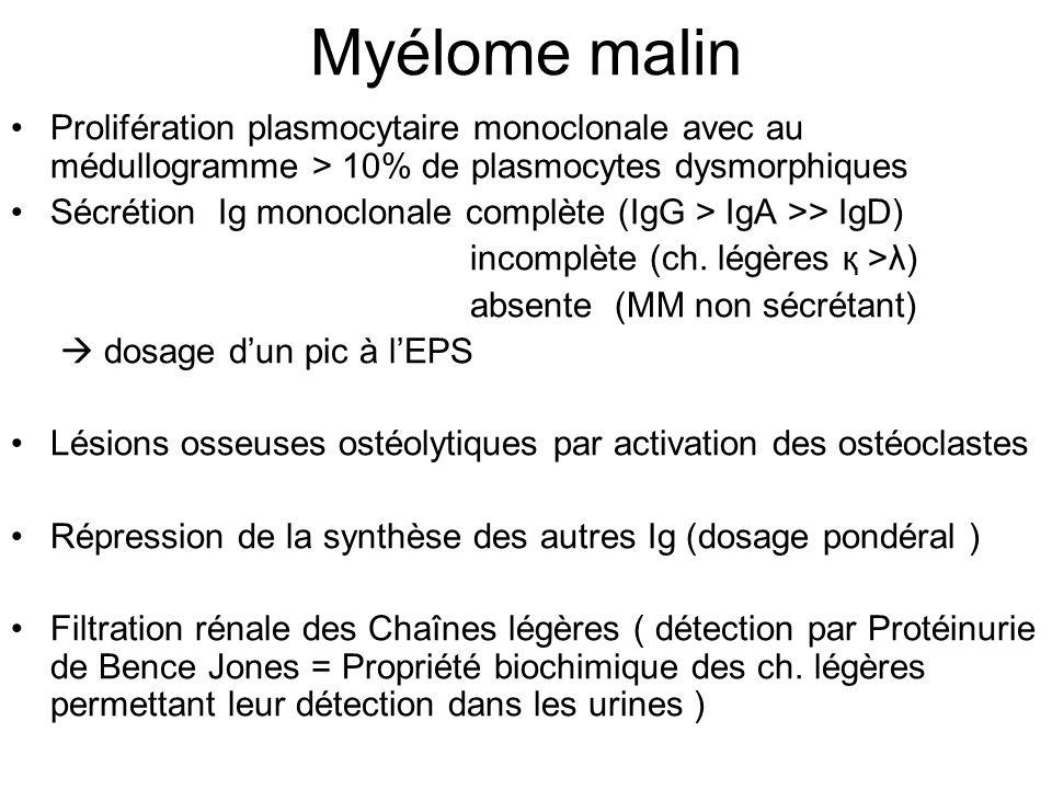 Myélome malin Prolifération plasmocytaire monoclonale avec au médullogramme > 10% de plasmocytes dysmorphiques.