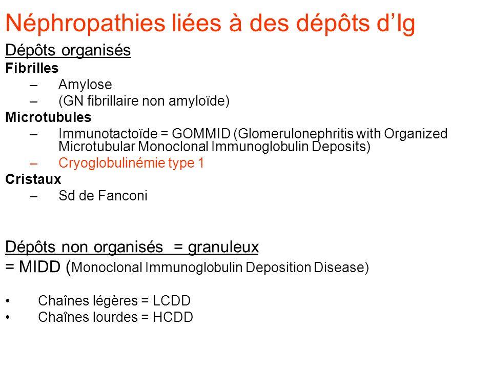 Néphropathies liées à des dépôts d'Ig