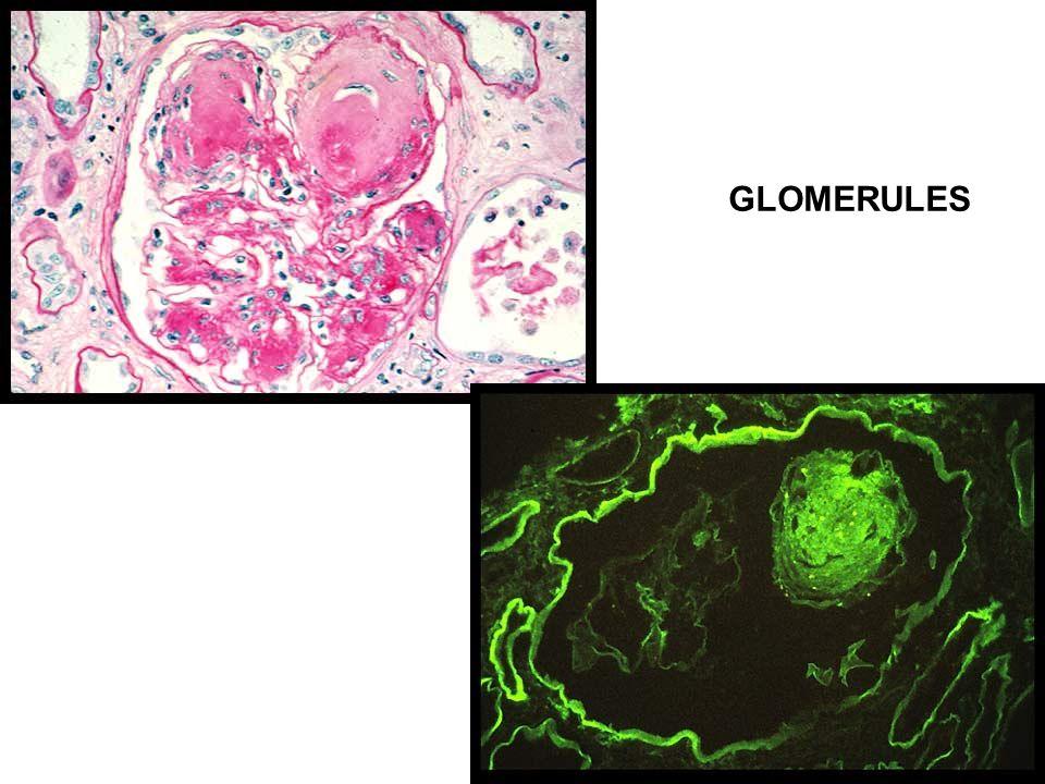 GLOMERULES