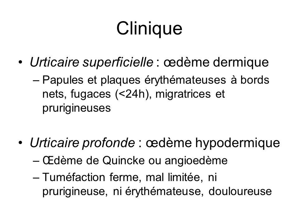 Clinique Urticaire superficielle : œdème dermique
