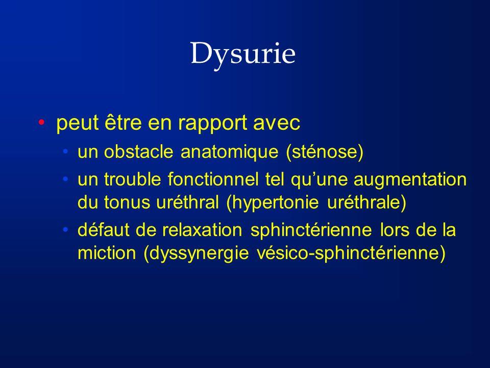 Dysurie peut être en rapport avec un obstacle anatomique (sténose)