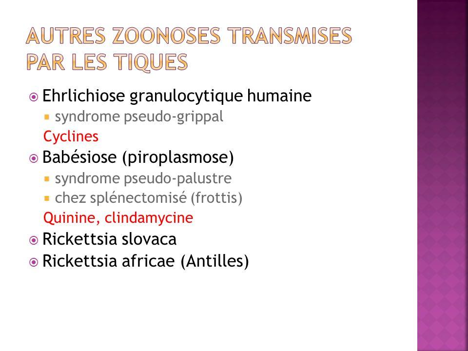 Autres zoonoses transmises par les tiques