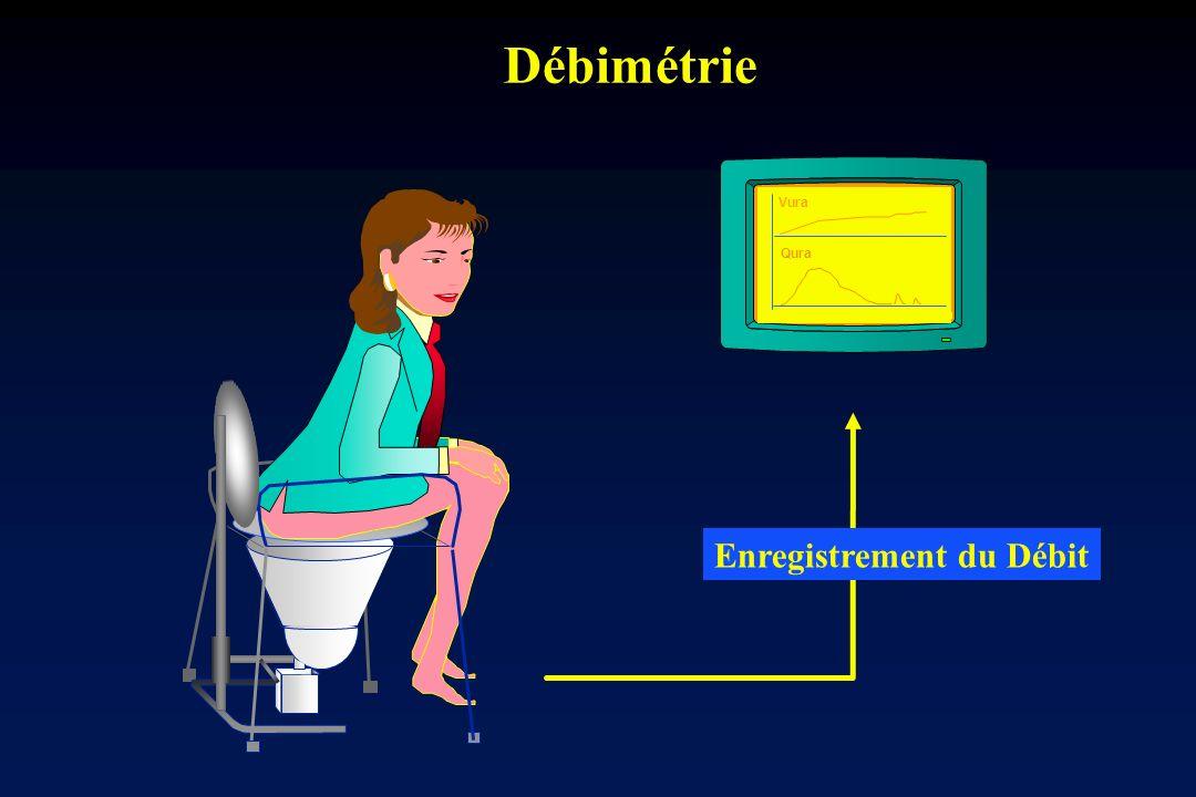Débimétrie Vura Qura Enregistrement du Débit