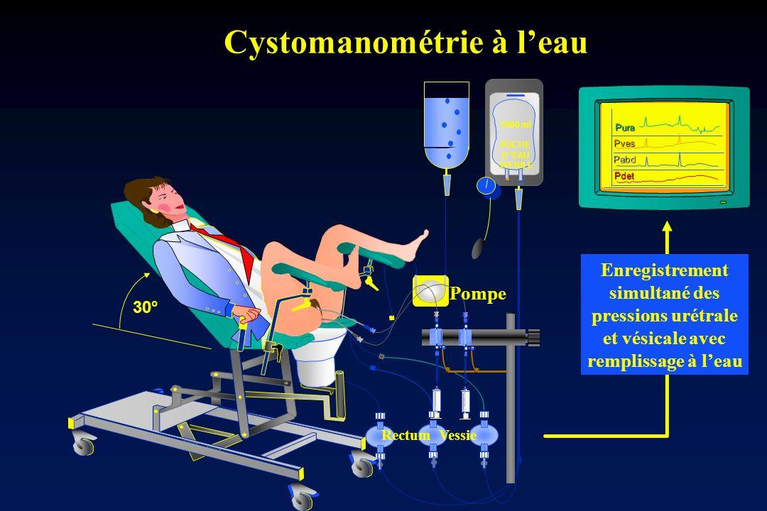 Cystomanométrie à l'eau
