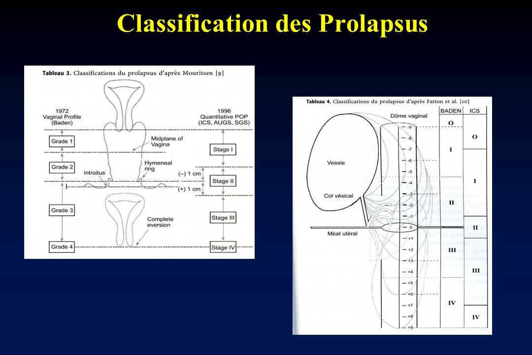 Classification des Prolapsus