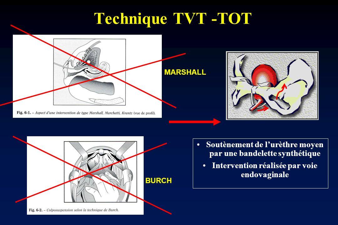 Technique TVT -TOT MARSHALL. Soutènement de l'urèthre moyen par une bandelette synthétique. Intervention réalisée par voie endovaginale.