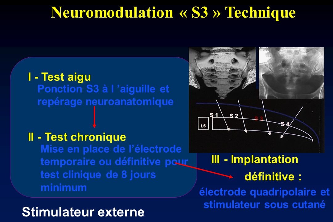 Neuromodulation « S3 » Technique