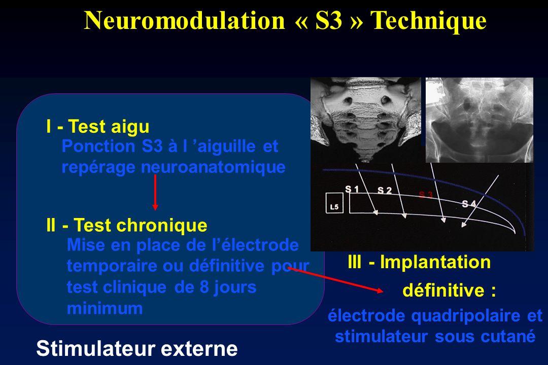 Neuromodulation « S3 » Technique