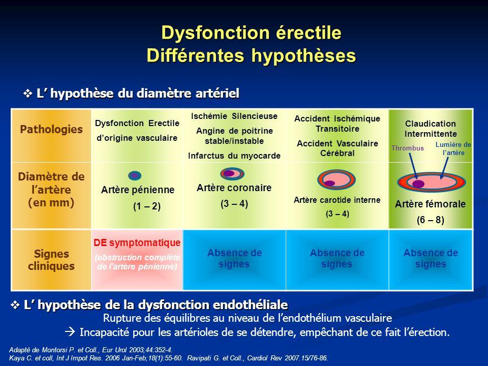 Dysfonction érectile Différentes hypothèses