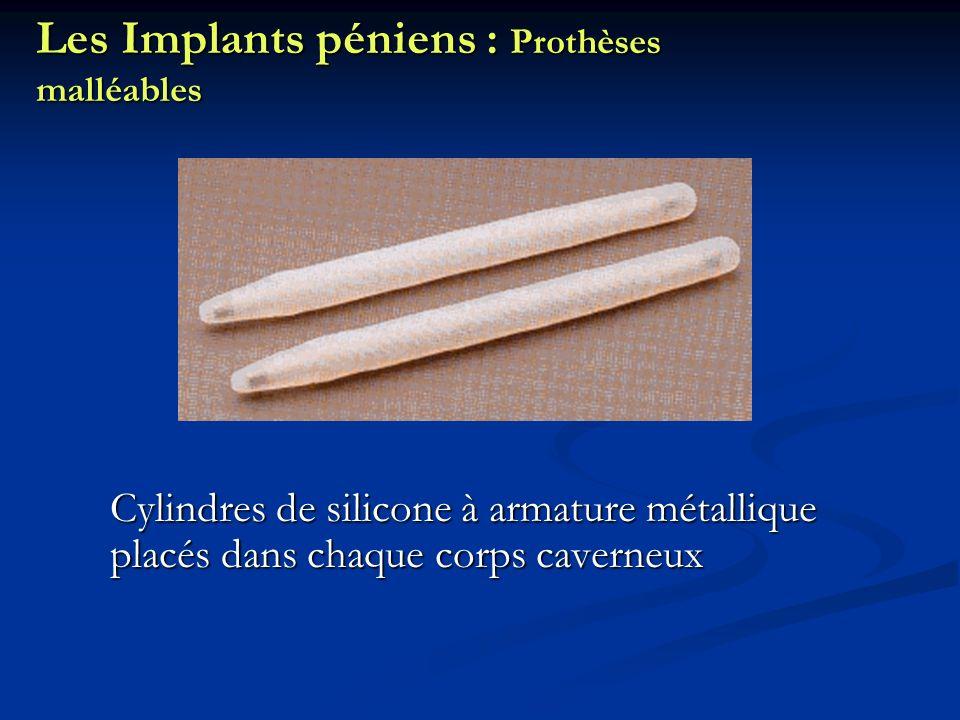Les Implants péniens : Prothèses malléables
