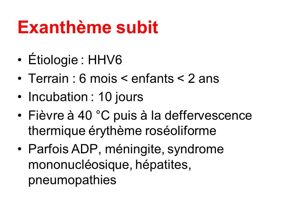Exanthème subit Étiologie : HHV6
