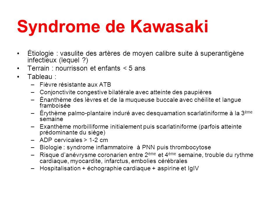 Syndrome de Kawasaki Étiologie : vasulite des artères de moyen calibre suite à superantigène infectieux (lequel )