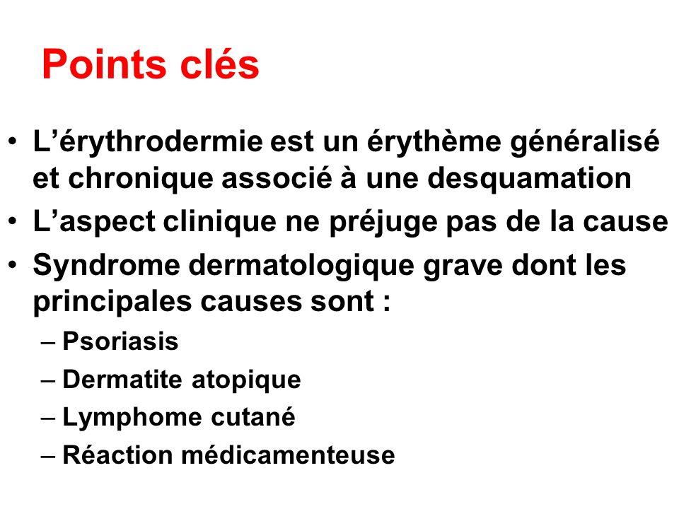 Points clés L'érythrodermie est un érythème généralisé et chronique associé à une desquamation. L'aspect clinique ne préjuge pas de la cause.