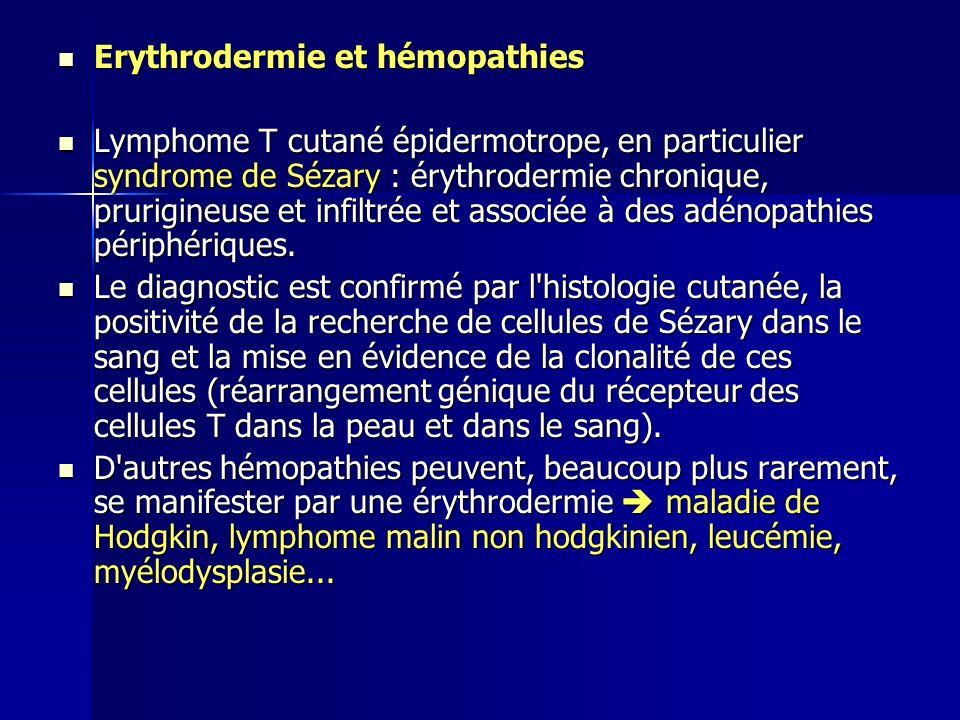 Erythrodermie et hémopathies