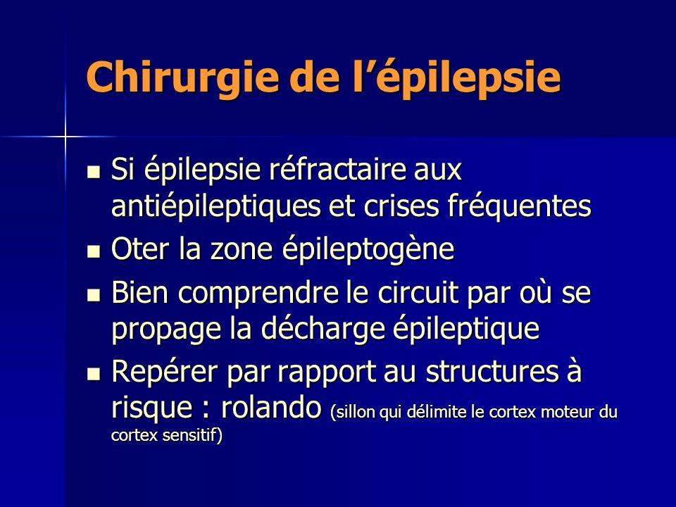 Chirurgie de l'épilepsie