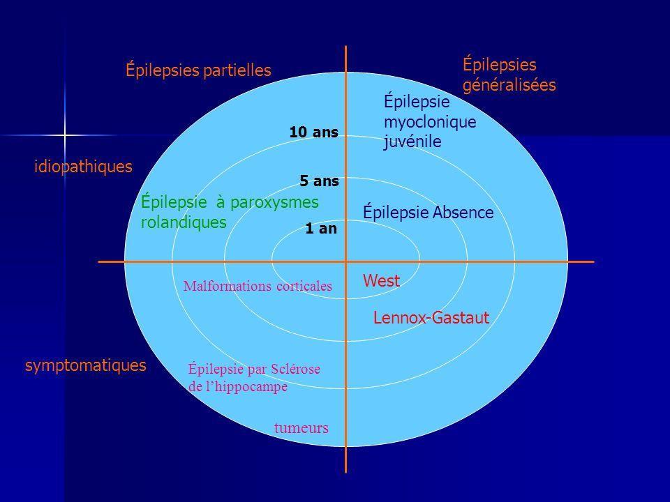 Épilepsies généralisées Épilepsies partielles