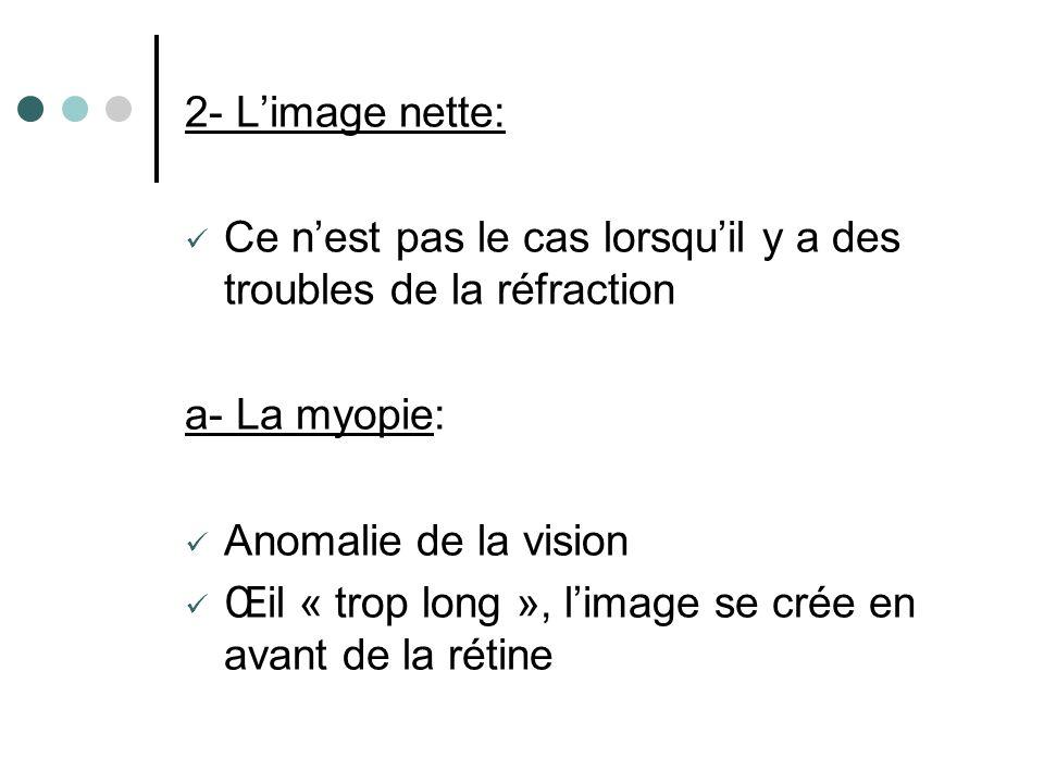 2- L'image nette: Ce n'est pas le cas lorsqu'il y a des troubles de la réfraction. a- La myopie: Anomalie de la vision.