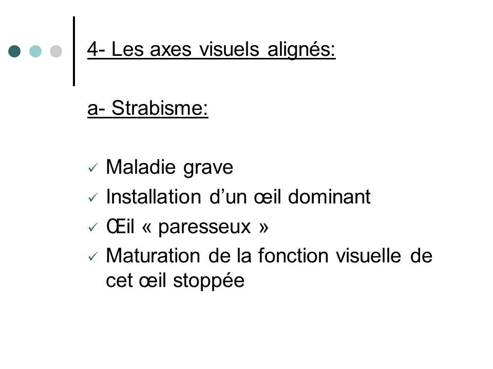 4- Les axes visuels alignés: