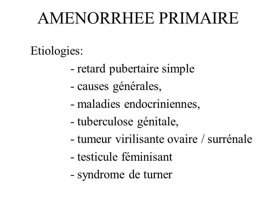 AMENORRHEE PRIMAIRE Etiologies: - retard pubertaire simple