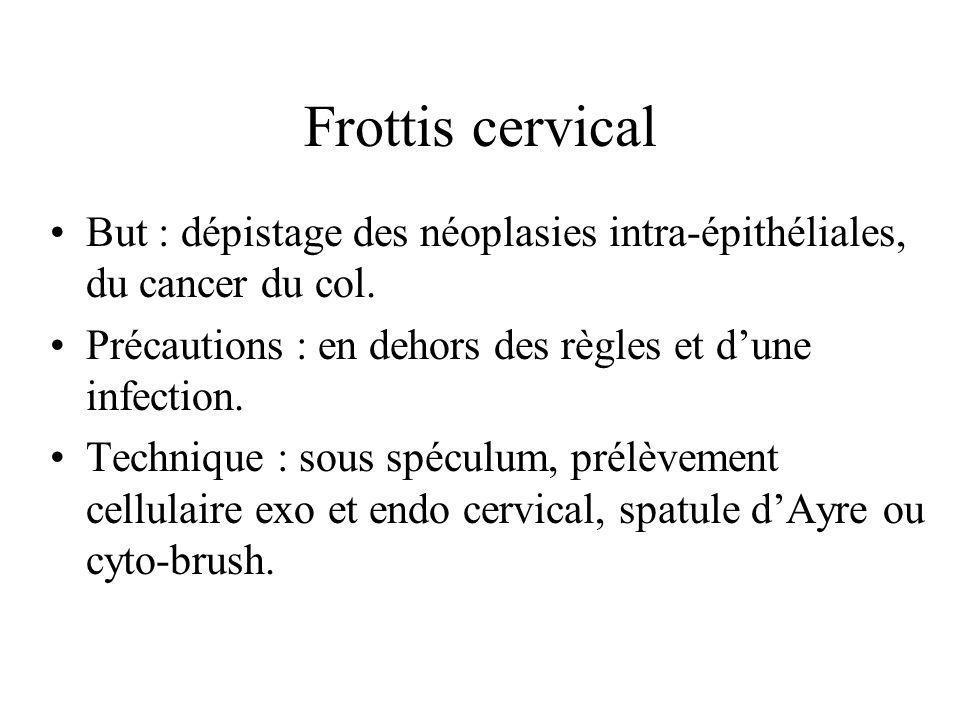 Frottis cervical But : dépistage des néoplasies intra-épithéliales, du cancer du col. Précautions : en dehors des règles et d'une infection.