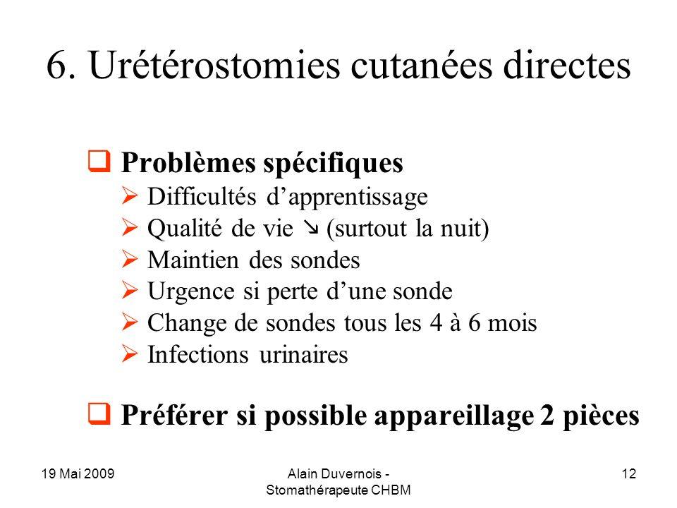 6. Urétérostomies cutanées directes
