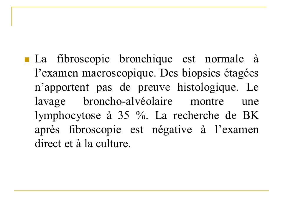 La fibroscopie bronchique est normale à l'examen macroscopique