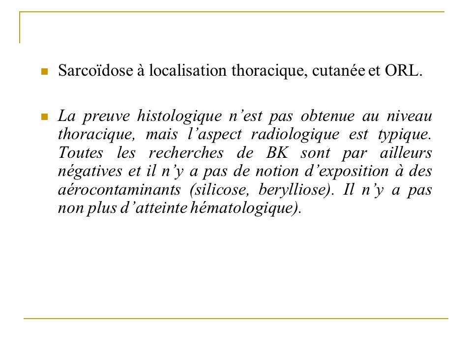 Sarcoïdose à localisation thoracique, cutanée et ORL.