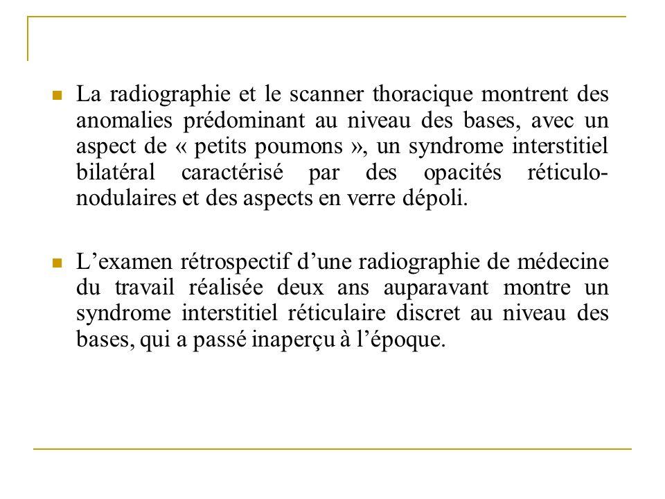 La radiographie et le scanner thoracique montrent des anomalies prédominant au niveau des bases, avec un aspect de « petits poumons », un syndrome interstitiel bilatéral caractérisé par des opacités réticulo-nodulaires et des aspects en verre dépoli.