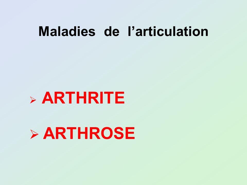Maladies de l'articulation