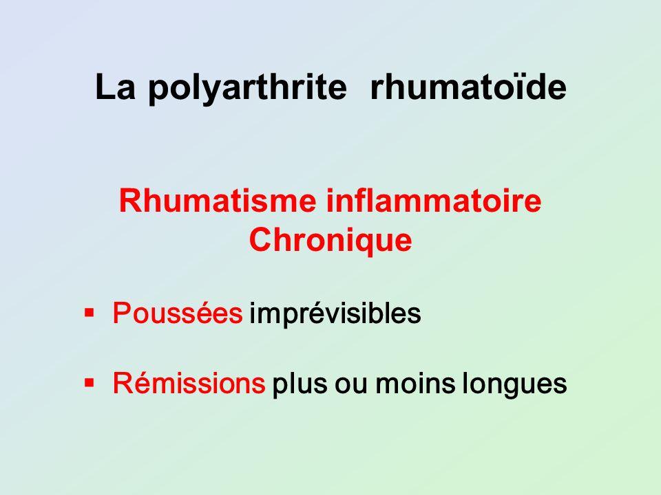 La polyarthrite rhumatoïde Rhumatisme inflammatoire