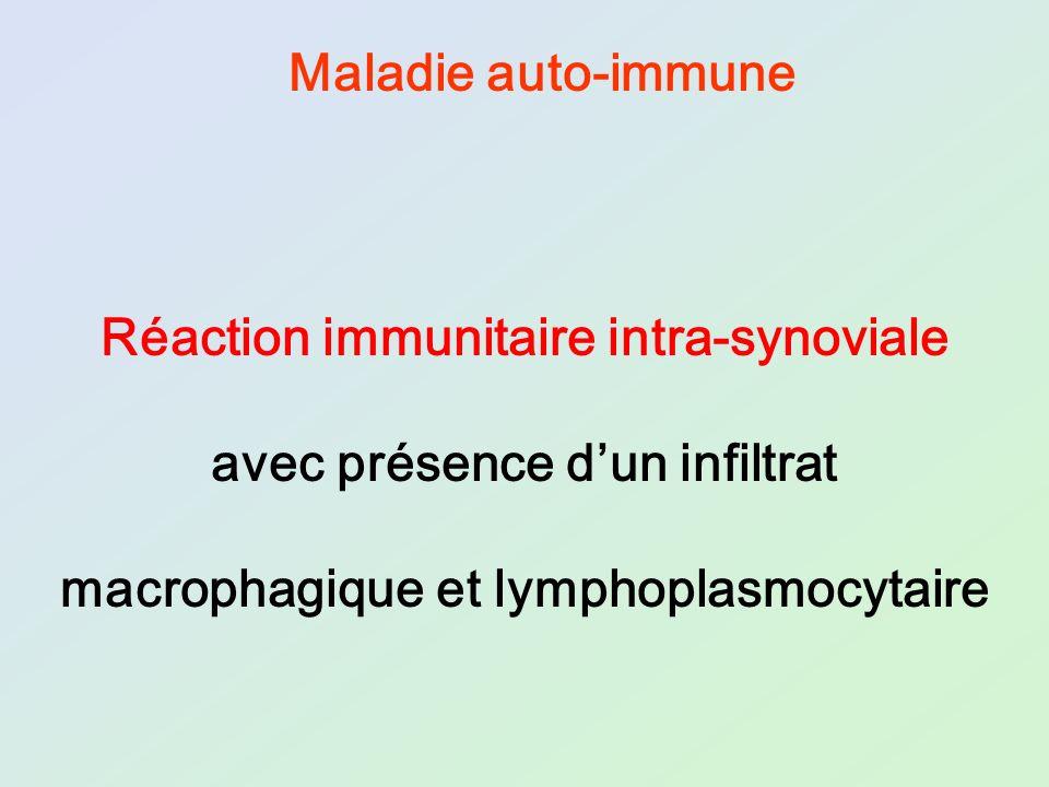 Réaction immunitaire intra-synoviale avec présence d'un infiltrat