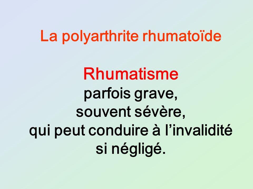 La polyarthrite rhumatoïde qui peut conduire à l'invalidité