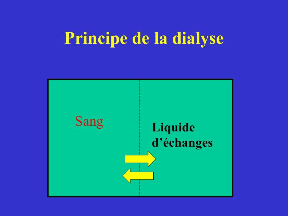 Principe de la dialyse Sang Liquide d'échanges