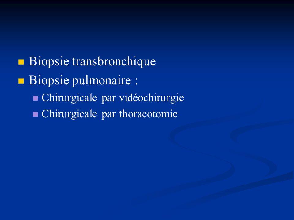 Biopsie transbronchique Biopsie pulmonaire :