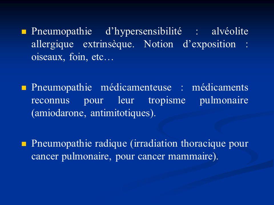 Pneumopathie d'hypersensibilité : alvéolite allergique extrinsèque