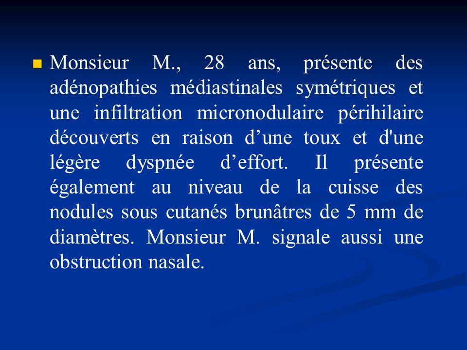 Monsieur M., 28 ans, présente des adénopathies médiastinales symétriques et une infiltration micronodulaire périhilaire découverts en raison d'une toux et d une légère dyspnée d'effort.