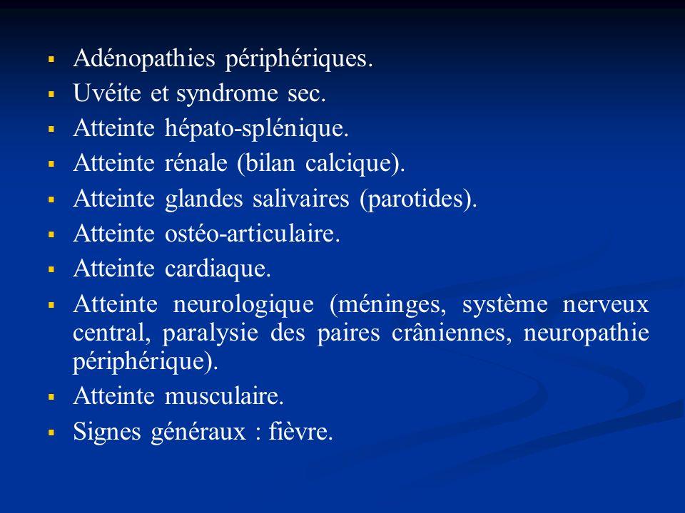 Adénopathies périphériques.