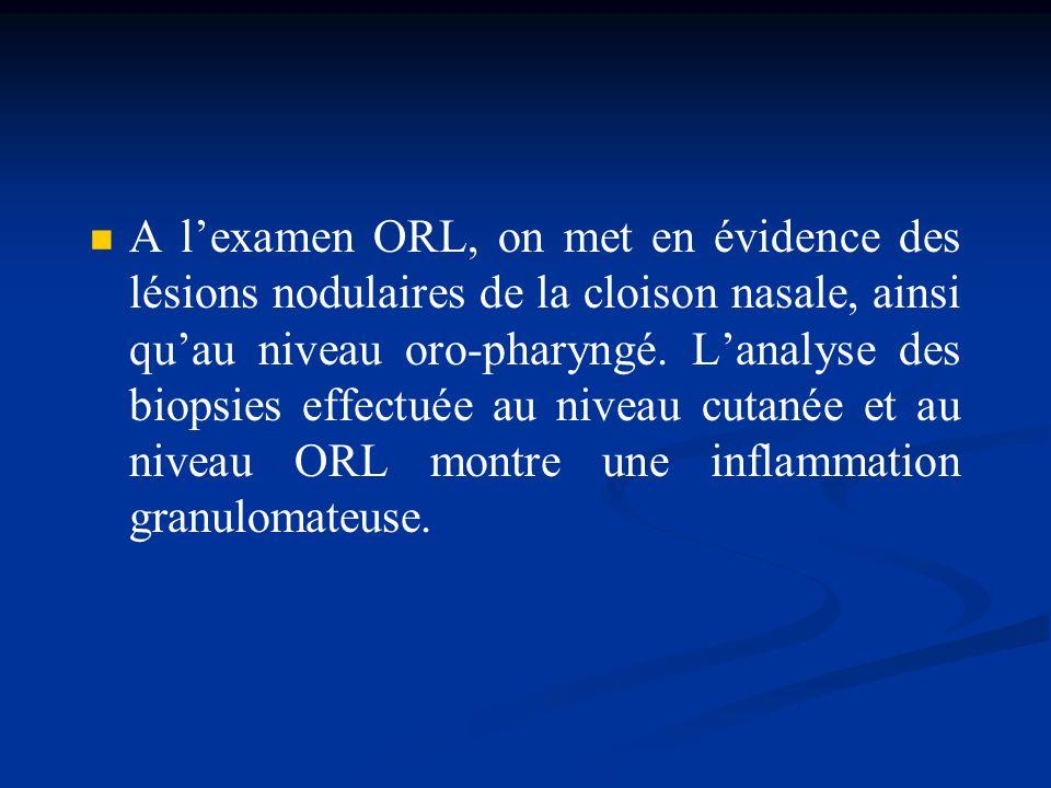 A l'examen ORL, on met en évidence des lésions nodulaires de la cloison nasale, ainsi qu'au niveau oro-pharyngé.