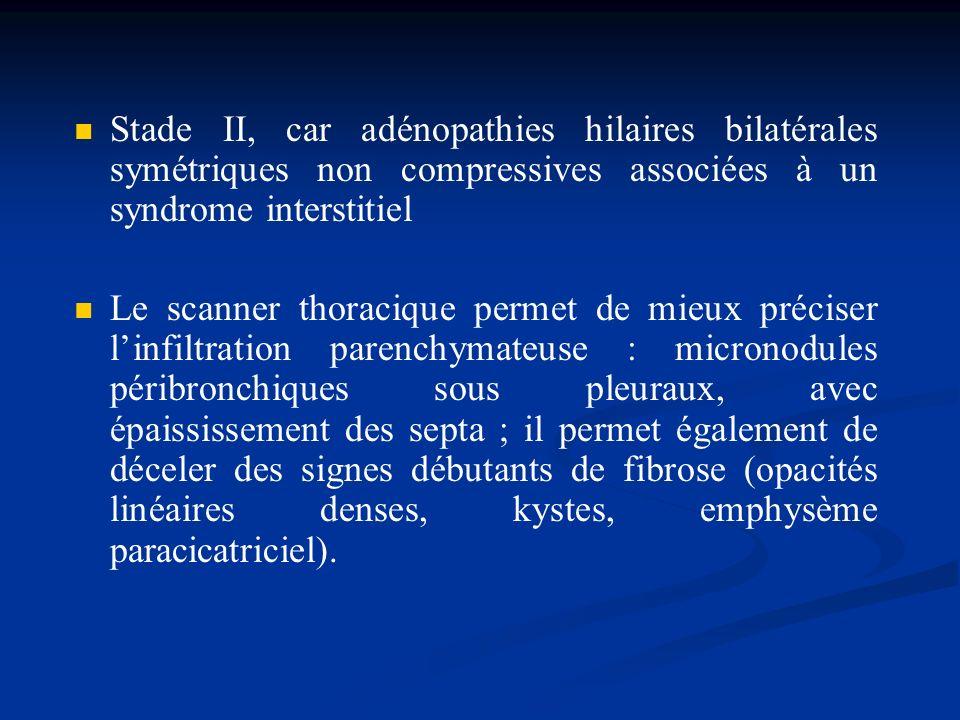 Stade II, car adénopathies hilaires bilatérales symétriques non compressives associées à un syndrome interstitiel