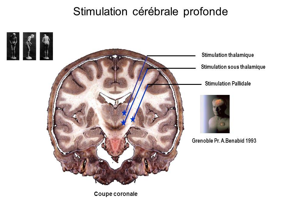 Stimulation cérébrale profonde